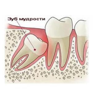 Лечение и удаление зубов