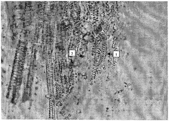 Элеутерококка колючего корневища и корни. Давленый препарат. Об¬рывки спиральных сосудов