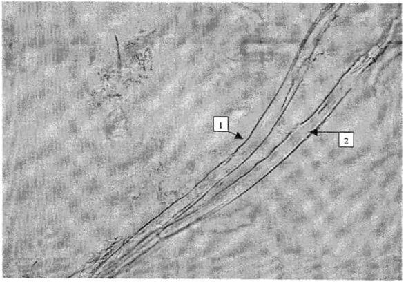 Элеутерококк колючий, корневища и корни. Давленый препарат