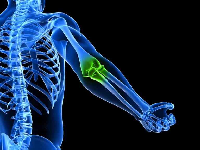 Томография локтевого сустава