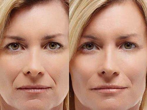 Коррекция овала лица без операции – это реально!