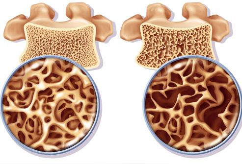 osteoporosis2[1]