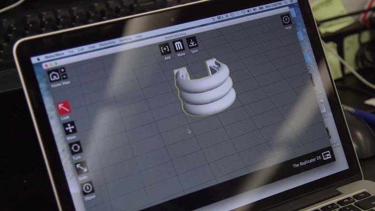 Трахейные хрящи можно печатать с помощью 3D-принтера