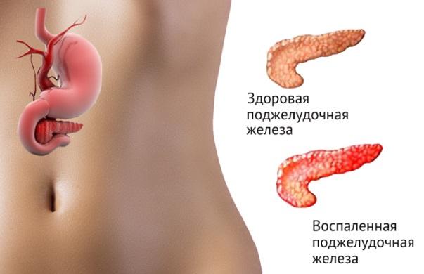 pankreatit