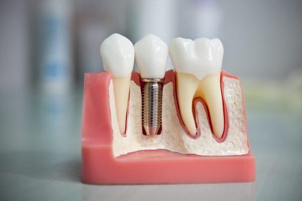 dentalnaya-implantaciya-600x400-1