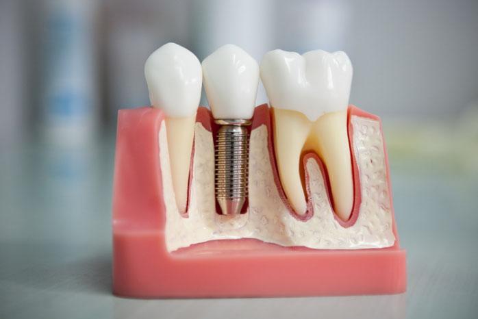 Профессиональная установка штифта в зуб
